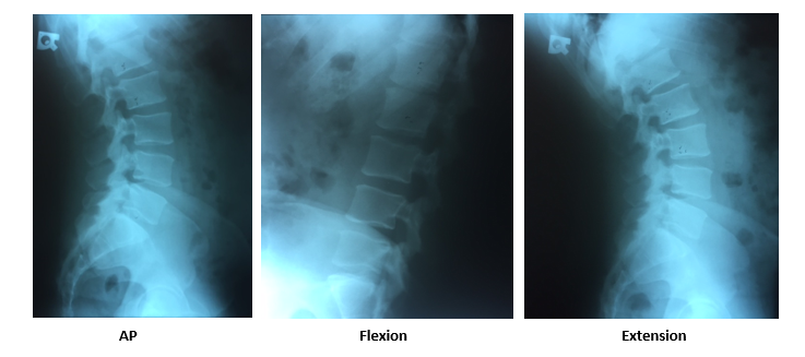 grade 1 retrolisthesis of l1 on l2 Grade 1 retrolisthesis of l1 on l2 was lincoln the great emancipator essay hypermobility at l2-3, x-ray from august of 2006 showed a grade 1 retrolisthesis of l4 to the l5 with suggestion of.